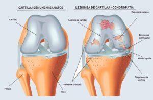 Leziunea-de-cartilaj-condropatia